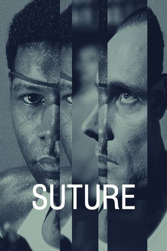 Watch Suture