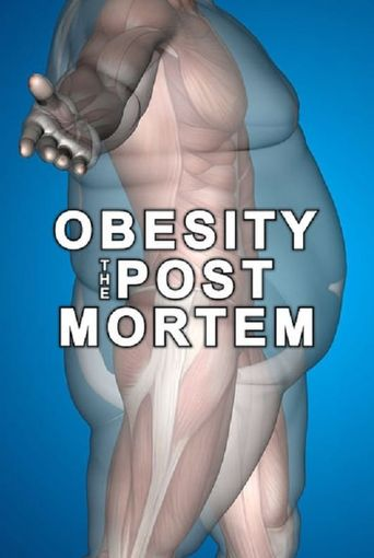 Watch Obesity: The Post Mortem