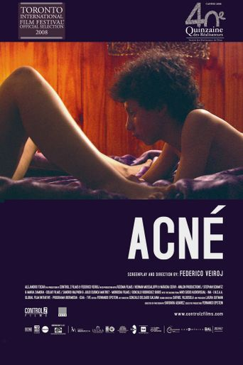 Acne Poster