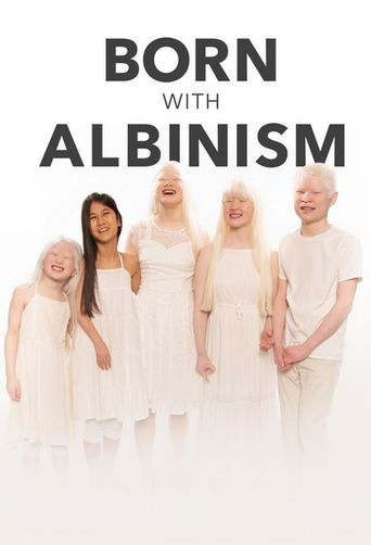 Born with Albinism Poster